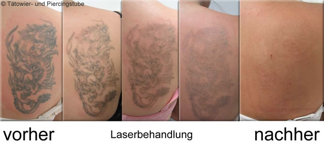 laser tattoo removal steroid cream